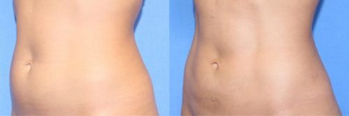 BodyTite Scarless Tummy Tuck from Changes Plastic Surgery