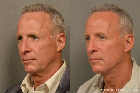 FaceTite Neck Lift by Changes Plastic Surgery