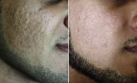 Fractional Laser Treatments for Acne Before & After