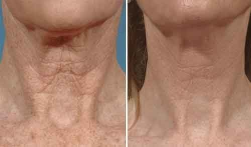 Titan Laser Treatments for Skin Tightening Before & After